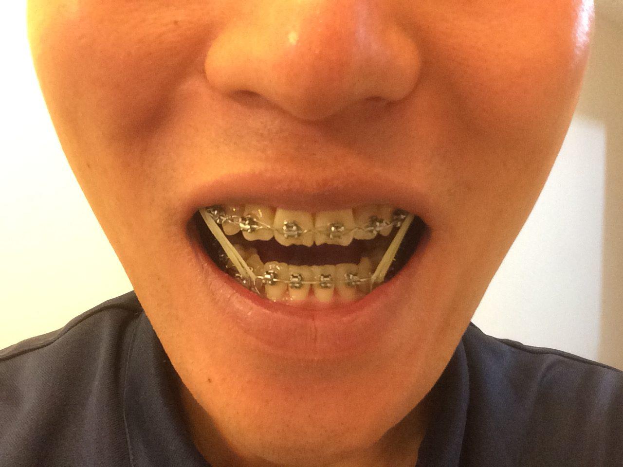 南米に2年間行くなら、歯列を綺麗にしてみてはいかがだろうか:コロンビアの歯列矯正事情(とても安い・うまい・期間は同じ)