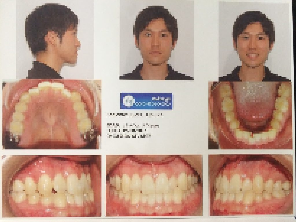 矯正 歯 値段 の